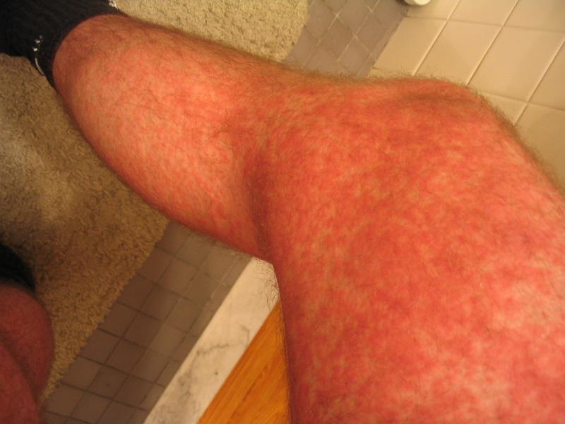bumpy rash on arms